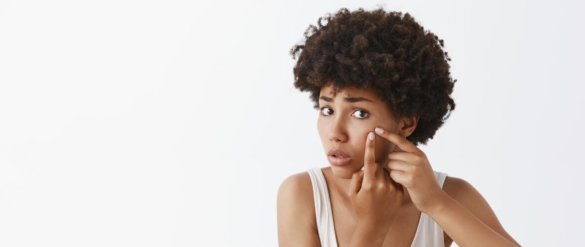 ¿Qué significa comedogénico en cosmética?